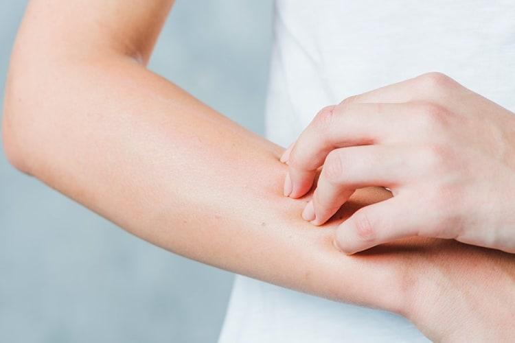 triệu chứng phát ban trên da gây ngứa
