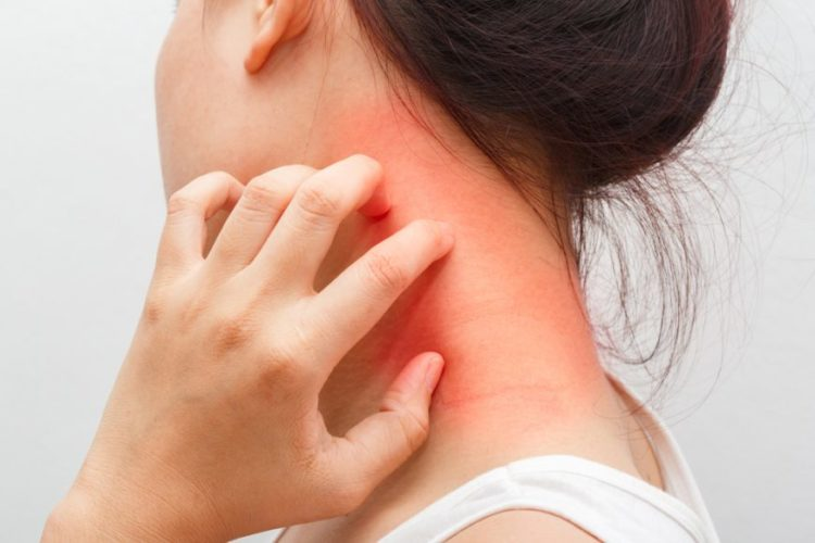 viêm da cơ địa gây phát ban trên da